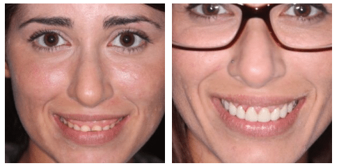 smile makeover patient before and after charleston sc